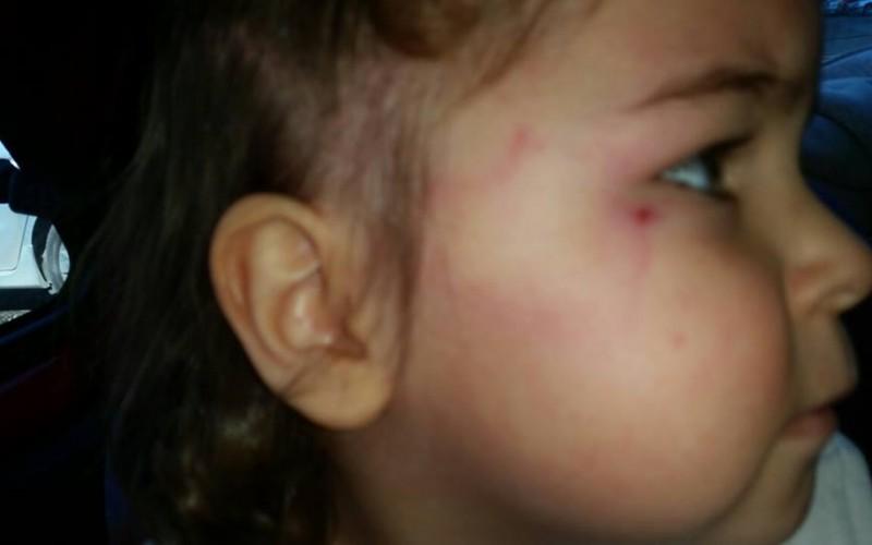 Дете на бивш национал пострада в яслата